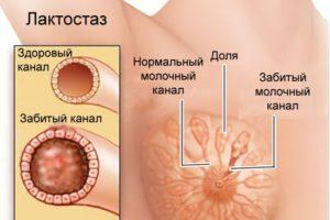 лечение в домашних условиях - забитые каналы