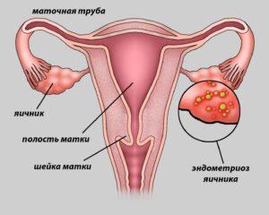 причины у женщин - яичник