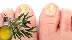 быстро вылечить грибок на ногтях ног - масло чайного дерева