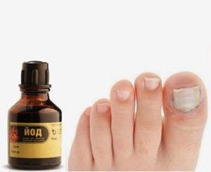 быстро вылечить грибок на ногтях ног - настойка йода