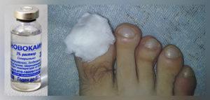 быстро вылечить грибок на ногтях ног - новокаиновая примочка