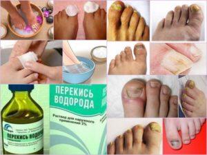 быстро вылечить грибок на ногтях ног - перекись водорода