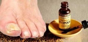 быстро вылечить грибок на ногтях ног - прополис