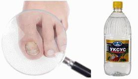 быстро вылечить грибок на ногтях ног - столовый уксус