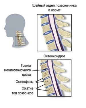 частые головные причины у женщин - шейный остеохондроз