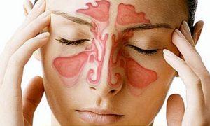 частые головные причины у женщин - синусит