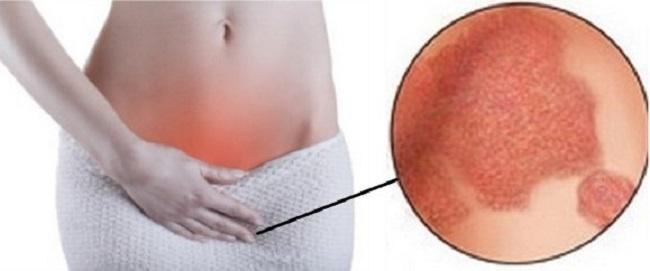 паховая эпидермофития - народные средства лечения
