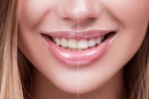 Как безопасно отбелить зубы в домашних условиях