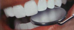 налета на зубах причины и способы устранения