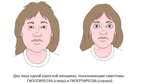 проблемы с щитовидной железой приводят к темным кругам под глазами